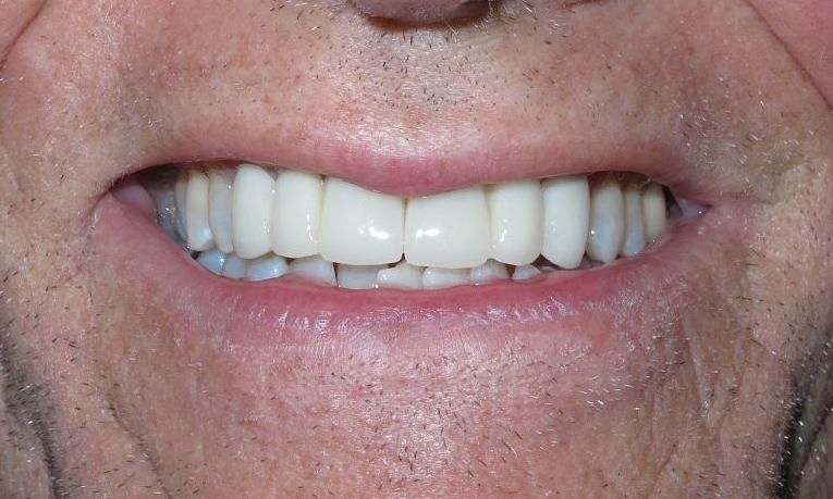 Crown-Bridge-and-K-R-Whitening-After-Image