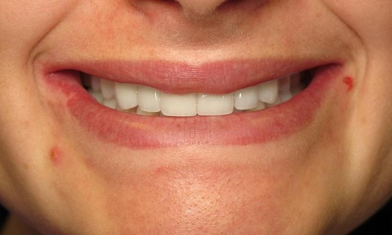 Implants-and-Teeth-Whitening-After-Image