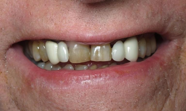 Crown-Bridge-and-K-R-Whitening-Before-Image