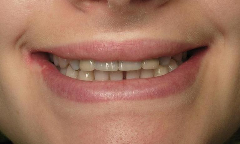 Implants-and-Teeth-Whitening-Before-Image
